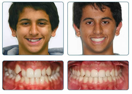 Braces and orthodontics to straighten teeth in Tamworth