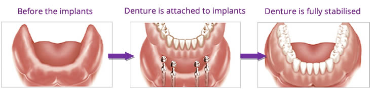 Dental implants combined with a denture