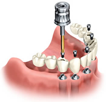 Dental  bridge secured with implants to the lower jaw