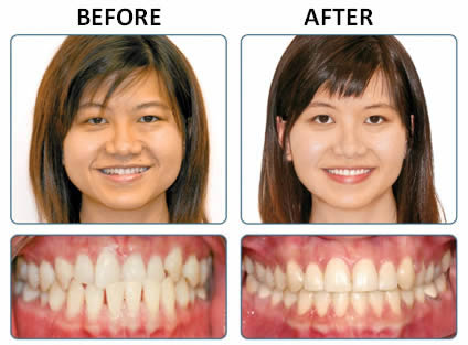 Insignia braces and orthodontist in Walsall