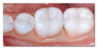 Mercury Free White Fillings