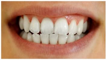 Teeth Whitening Sutton Coldfield Birmingham Free Consultation